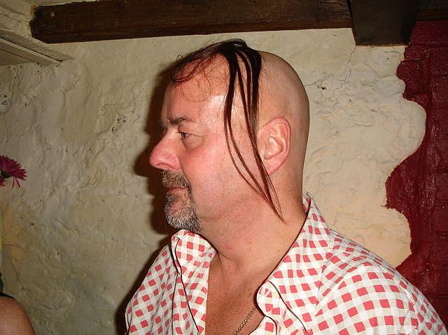 hårtransplantasjon-eavisa11