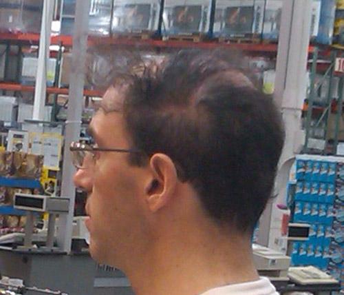 hårtransplantasjon-eavisa14