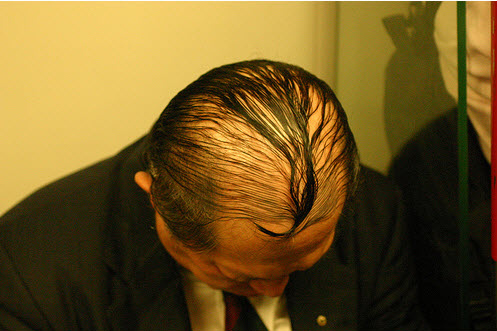 hårtransplantasjon-eavisa4