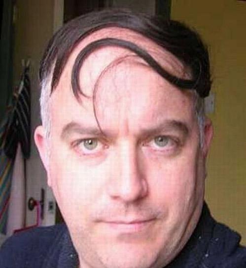 hårtransplantasjon-eavisa7
