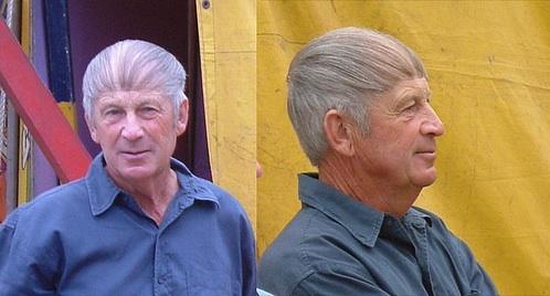 hårtransplantasjon-eavisa8