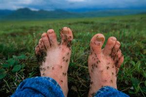 Mygg infiserte føtter