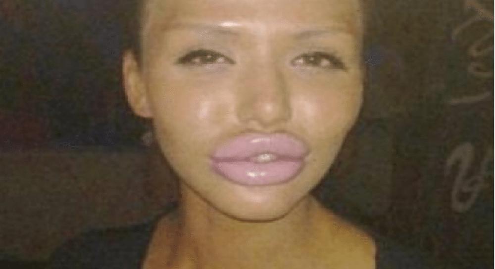 Karoline (27 år) fikk et bedre sexliv etter at hun opererte leppene sine!