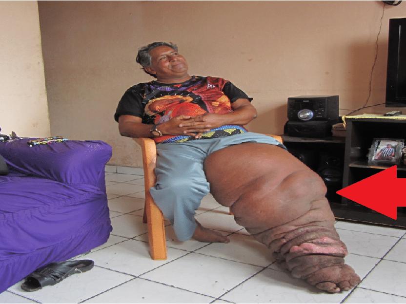 16 personer med ekstremt unormale og STORE kroppsdeler