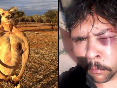 FIKK SOM FORTJENT? Jeger ble skallet ned og banket opp av kenguruen han jaktet på!
