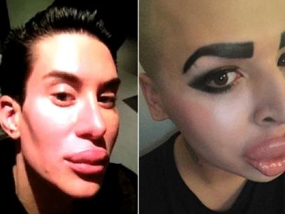 12 bevis på at også menn blir skikkelig vakre om de opererer seg!