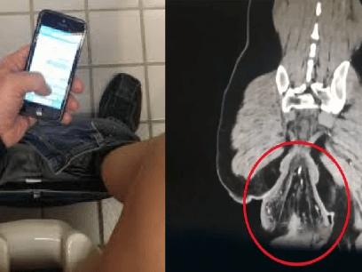 En manns rektum falt ut etter at han spilte mobilspill i 30 minutter på do!