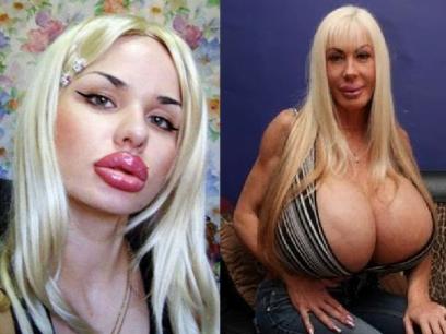 17 bevis på at du blir penere med skjønnhetsoperasjoner