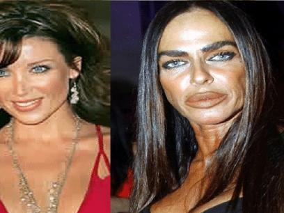 17 bevis på at skjønnhetsoperasjoner gjør deg utrolig vakker!