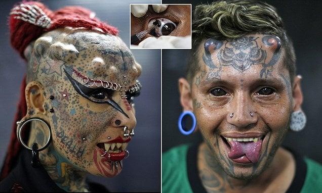 18 helt normale mennesker som har fått en nål inn i øyet! Vakkert!