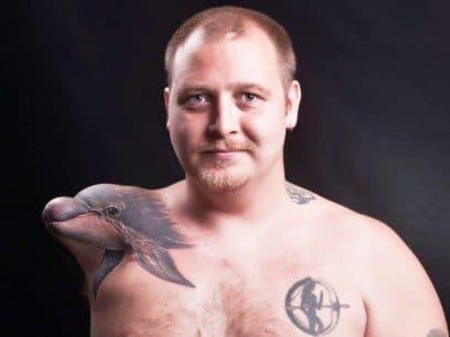 22 mennesker som tatoverte alvorlige arr til noe morsomt