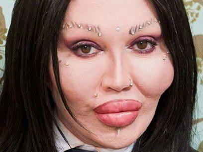 Her er 20 bevis på at du blir MYE PENERE med skjønnhetsoperasjoner