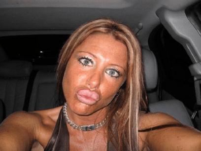 LEGER ADVARER: Flere og flere kvinner lider av merkelig sykdomstilstand som gjør leppene hovne og komiske