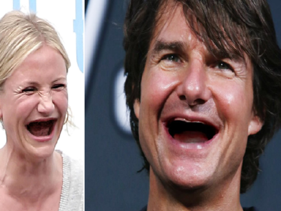 SISTE: Flere og flere kjendiser velger å trekke tennene sine for å se kulere ut